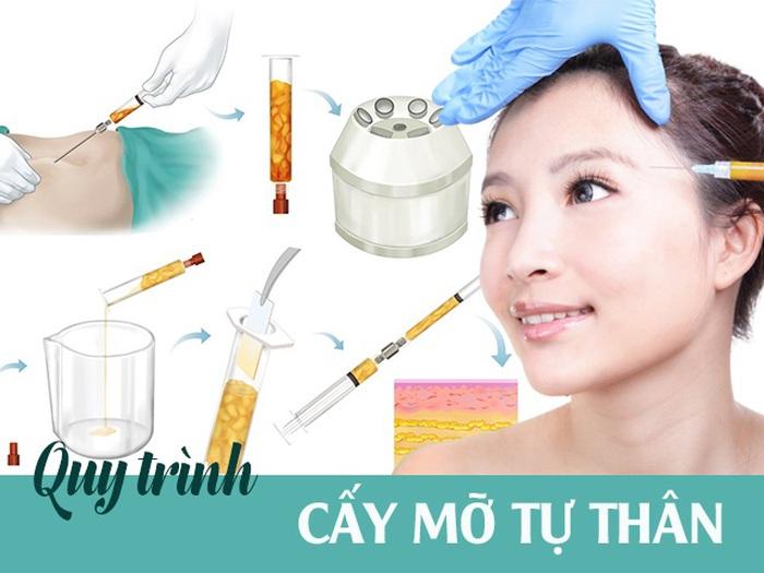 """Mục sở thị"""" quy trình cấy mỡ tự thân: Nàng cần nắm ngay trước khi bước lên  bàn hút mỡ » Báo Phụ Nữ Việt Nam"""