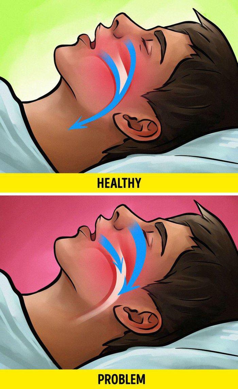 Nếu bạn ngủ nhiều hơn 10 tiếng mỗi ngày, có thể là dấu hiệu cảnh báo về sức khỏe - Ảnh 6.