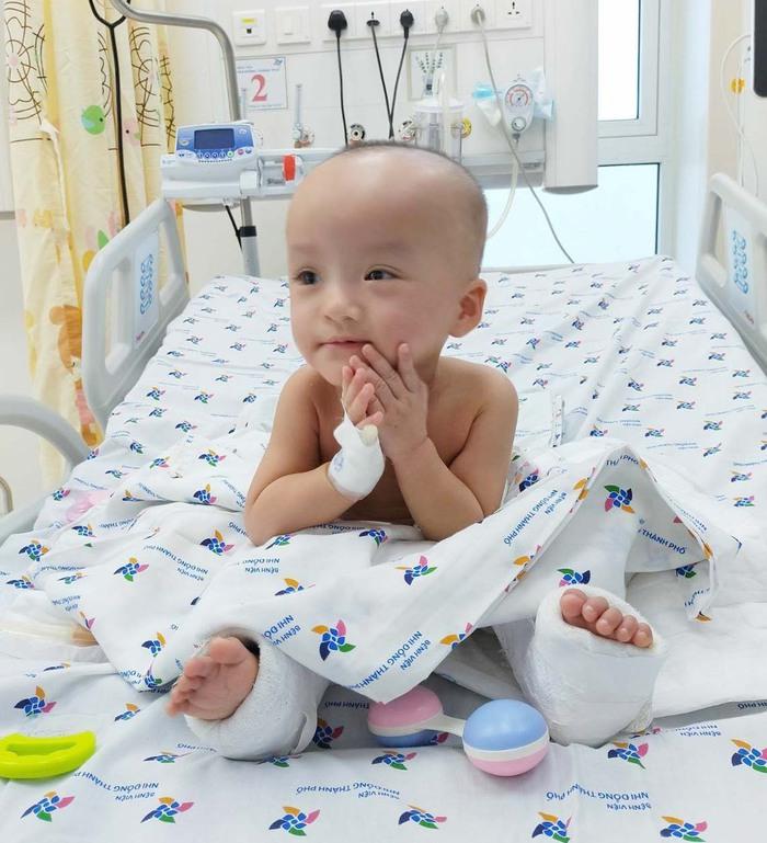 25 ngày sau ca đại phẫu tách rời, bé song sinh Trúc Nhi, Diệu Nhi đã tự ngồi dậy vui đùa - Ảnh 1.