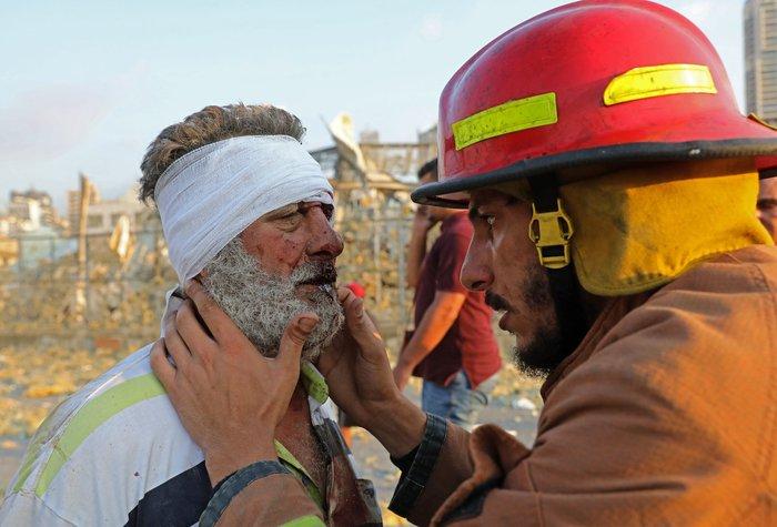 Nổ lớn ở Lebanon, ít nhất 78 người chết, hàng nghìn người bị thương - Ảnh 4.