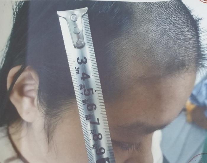 Bắc Ninh: Bắt tạm giam người bố bạo hành con gái 14 tuổi đến ngất xỉu - Ảnh 1.