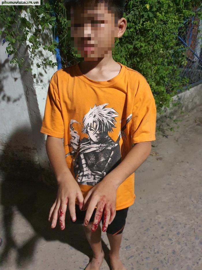 Vụ cha đánh nát tay con rồi bắt đi bán vé số: Cục Trẻ em lên tiếng - Ảnh 1.