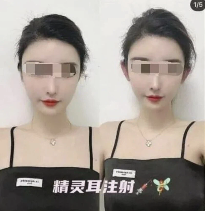Trung Quốc rộ trào lưu phẫu thuật tạo hình để có 'tai yêu tinh' - Ảnh 2.