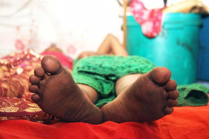 Somalia: Bé gái 13 tuổi chảy máu đến chết vì hủ tục cắt âm vật - Ảnh 2.