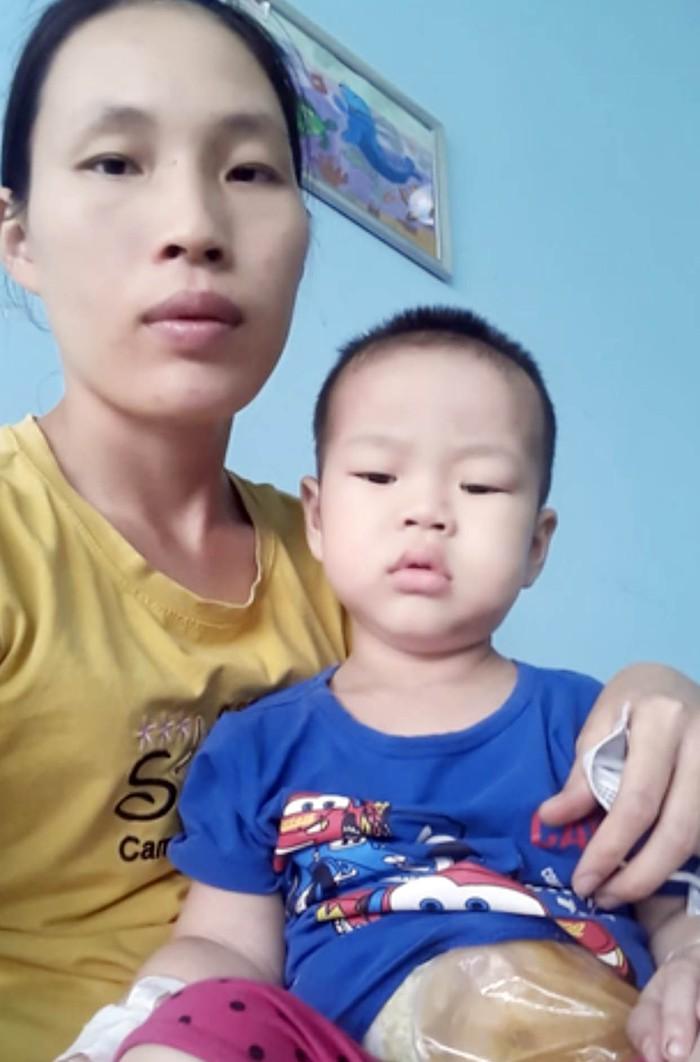 Hoàn cảnh khó khăn của cậu bé 3 tuổi đã 7 lần phẫu thuật để giành sự sống - Ảnh 1.