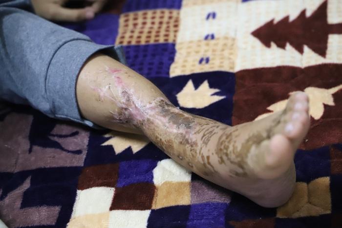 Cậu bé khép lại giấc mơ sân cỏ vì đôi chân khuyết tật sau lần tai nạn giao thông - Ảnh 2.