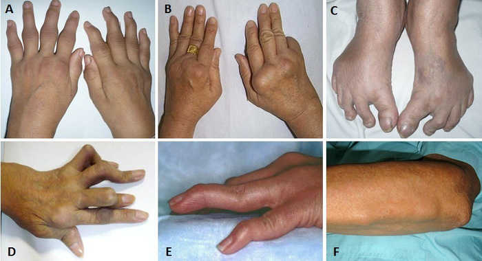 Viêm khớp dạng thấp: Dễ rước họa vì điều trị sai cách - Ảnh 1.