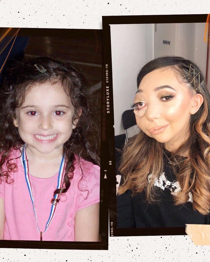 Nikki Lilly thuở nhỏ và sau khi bị bệnh