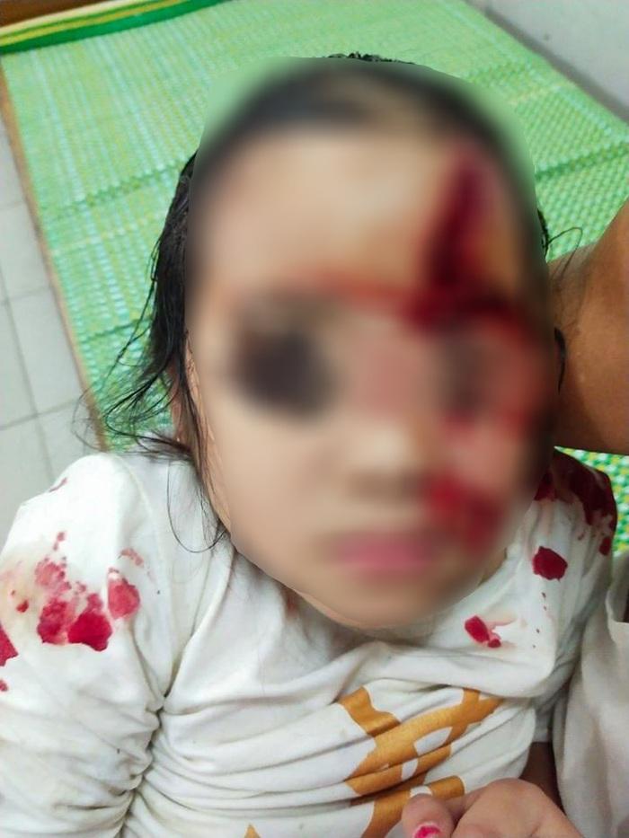Bé 6 tuổi bị chó cắn nát mặt - Ảnh 1.