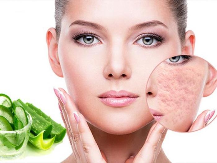 Cách trị sẹo rỗ lâu năm an toàn hiệu quả nhất từ nguyên liệu dễ kiếm » Báo Phụ Nữ Việt Nam