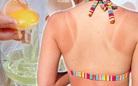 Áp dụng 5 cách chăm sóc da bị cháy nắng đơn giản giúp da lên tông nhanh chóng