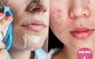Những nguyên tắc chăm sóc da mụn bạn cần nằm lòng để có làn da căng mịn, trắng sáng