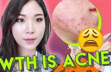 Beauty blogger Hàn chia sẻ nên và không nên ăn gì khi làn da bị mụn