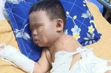 Không cầm được nước mắt trước cảnh bé trai bỏng khắp người vì bị ném bom xăng đêm sinh nhật