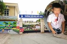 """Mẹ học sinh lớp 1 bị hành hung ở Hòa Bình: """"Tại sao con tôi đang ở trong trường lại bị lôi ra ngoài đánh?"""""""