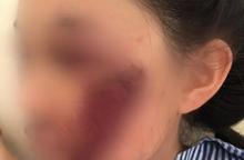 Áo chống nắng cuốn vào bánh xe, nữ sinh 15 tuổi bị gãy xương gò má, xây xát vùng mặt