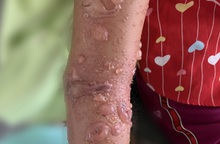 Bé gái 8 tuổi phải nhập viện điều trị do bị sứa biển cắn