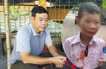 Vụ học sinh lớp 1 bị đánh ở Hòa Bình: Gia đình yêu cầu làm rõ trách nhiệm của nhà trường