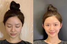 """Cơn sốt phẫu thuật để có """"tai yêu tinh"""" trong giới trẻ Trung Quốc"""