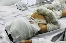 Tình trạng bé trai 6 tuổi bị dì tưới xăng đốt hiện ra sao?