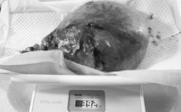 Khối u xơ nặng gần 4kg chiếm trọn thân tử cung