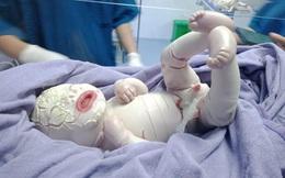 Xót xa hình ảnh bé sinh non da bị lớp sừng bao phủ, nứt toác
