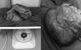 Cắt bỏ khối u nặng hơn 4kg cho nữ bệnh nhân ở Quảng Ninh