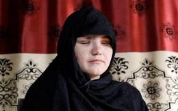 """Nữ cảnh sát bị cha """"chỉ điểm"""" cho khủng bố đâm mù mắt vì """"ra ngoài làm việc"""""""