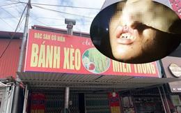 Nhân viên bị chủ quán bánh xèo hành hạ ở Bắc Ninh: Từng bắt xe ôm bỏ trốn lúc nửa đêm