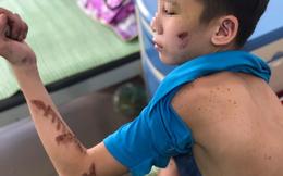 Hội LHPN tỉnh Bắc Ninh lên tiếng bảo vệ quyền lợi cho bé trai bị hành hạ ở quán bánh xèo miền Trung