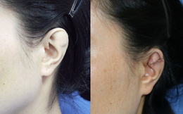 Hơn 30 năm sống trong mặc cảm vì đôi tai khác thường