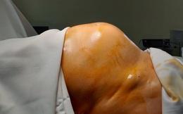 Bà 64 tuổi bụng to như mang thai 7 tháng, đi khám mới biết mang khối u ác tính