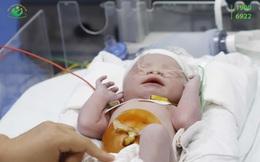 Vừa chào đời, trẻ sơ sinh đã mắc bệnh tim nặng
