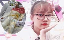 Cô gái bị bỏng toàn thân, người yêu qua đời: Dự định sang năm đám cưới mãi tiêu tan