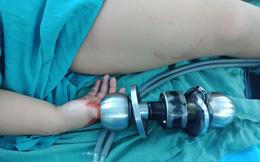 Ngón tay bé 3 tuổi rỉ máu vì mắc kẹt vào ổ khóa