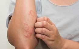 Phòng tránh hiệu quả 5 bệnh mùa hè