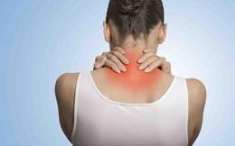 Người phụ nữ bị sưng tấy vùng gáy tự điều trị nhưng không đỡ, đi khám mới biết mắc bệnh than