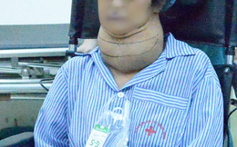 Bệnh basedow gây khối u khổng lồ gây khổ cho nữ bệnh nhân 10 năm trời