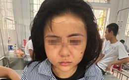 Hội LHPN tỉnh Yên Bái nói gì về vụ cô gái bị gã đàn ông xăm trổ đánh đập suốt 2 tiếng?