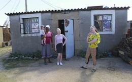 Những người bạch tạng ở Zimbabwe đối mặt với sự kỳ thị trong mùa Covid-19