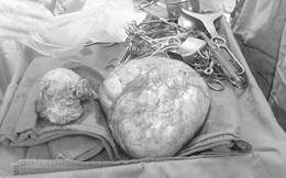 Nữ bệnh nhân ở Cao Bằng có khối u xơ lớn gấp 10 lần tử cung