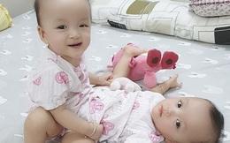 Hơn 90 y bác sĩ sẽ tham gia ca đại phẫu tách bé gái song sinh dính liền