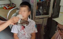 Học sinh lớp 1 bị hành hung dã man ở Hòa Bình: Đã khởi tố vụ án