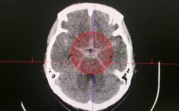 Cứu sống nữ bệnh nhân bị xuất huyết màng não sau cơn đau đầu dữ dội