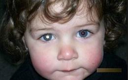 Điều cần biết về đục thủy tinh thể ở trẻ em