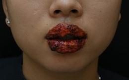 Môi sưng, rỉ dịch sau khi xăm môi ở thẩm mỹ viện