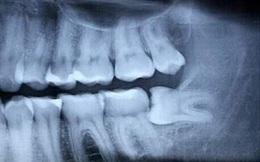 Ảnh hưởng của nhổ răng lên hệ thần kinh