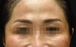Độc tố botulinum có thể giúp trẻ hóa làn da, làm thon gọn khuôn mặt
