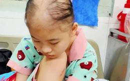 Xót xa hoàn cảnh nữ sinh lớp 8 bị ung thư xương đứng trước nguy cơ phải cắt chân