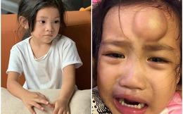 Con gái Hải Băng bị cào rách mặt vì ẩu đả, con Ốc Thanh Vân tai nạn còn xót hơn
